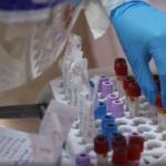 566 выздоровевших, 173 заболевших коронавирусом за сутки в Хакасии